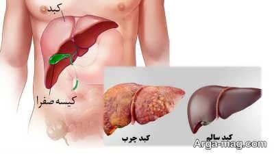 تشخیص کبد چرب تا درمان