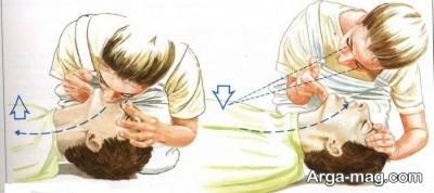 آموزش تنفس مصنوعی سیلوستر