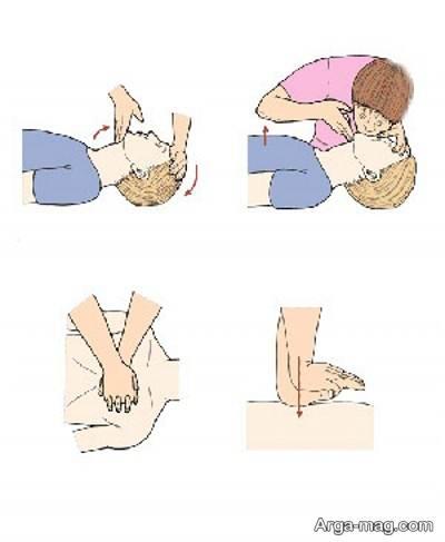 آموزش تنفس مصنوعی به نوزادان و کودکان