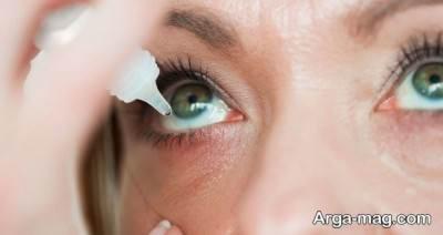 روش درمانی برق زدگی چشم