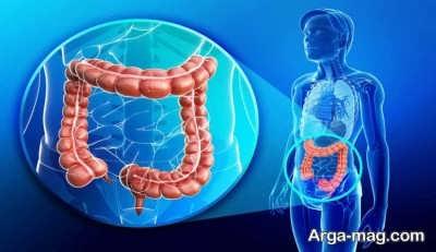 درمان های گیاهی کولیت روده
