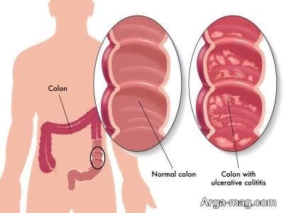 درمان کولیت روده با گیاهان دارویی
