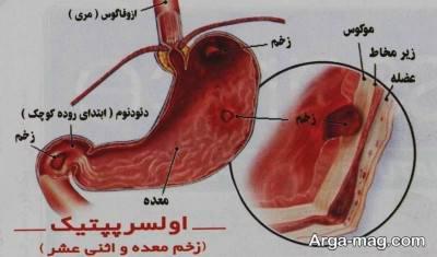 درمان های خانگی موثر و مفید در رفع زخم معده