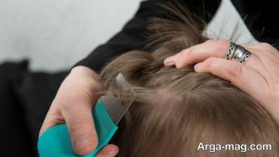 راه و روش درمان شپش موی سر