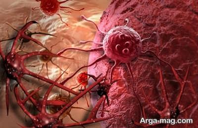 عواملی که خطر ابتلا به سرطان خون را افزایش می دهد