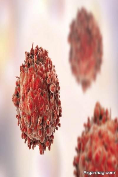سرطان خون مزمن چیست؟