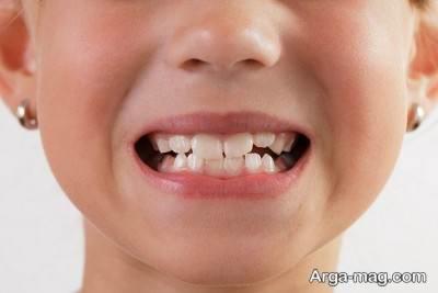 علت بروز دندان قروچه در کودکان و بزرگسالان