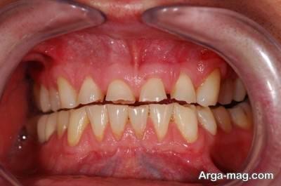 علل ایجاد دندان قروچه در بزرگسالان و کودکان