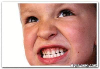 راه های درمانی دندان قروچه