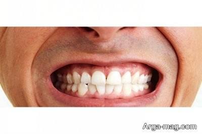 روش های درمان دندان قروچه