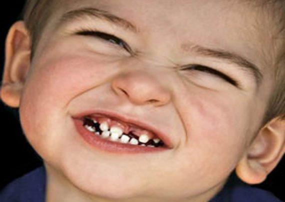 علت دندان قورچه