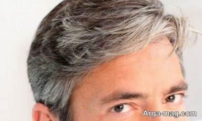 راه های پیشگیری از سفید شدن مو