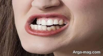 راهکارهای درمان دندان قروچه
