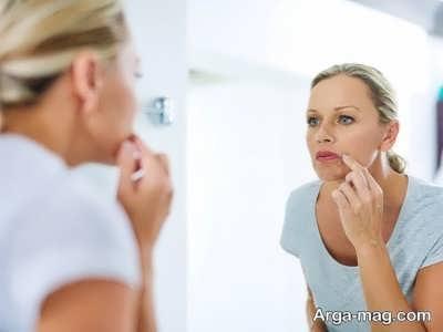 درمان فلج چهره