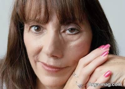 آشنایی با درمان فلج صورت
