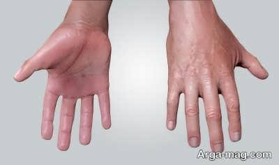 araq kardan kaf dast 3 - اگر کف دست هایتان عرق می کند، این مقاله را بخوانید