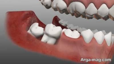 مراقبت های لازم بعد از انجام عمل جراحی دندان عقل