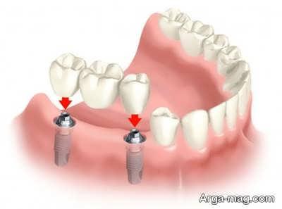 بریج یا ایمپلنت کدام یک برای ترمیم دندان های شما مناسبتر است؟