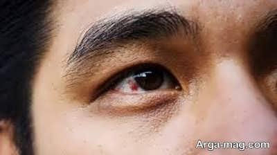 چند روش خانگی عالی برای درمان گیاهی ناخنک چشم