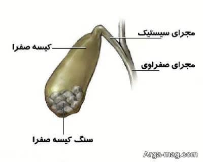 راه های درمان گیاهی سنگ کیسه صفرا