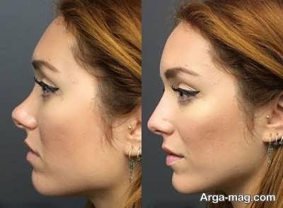 معایب جراحی بینی با لیزر