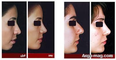 جراحی بینی با لیزر امکان دارد؟