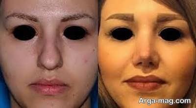 از جراحی بینی با لیزر چه می دانید