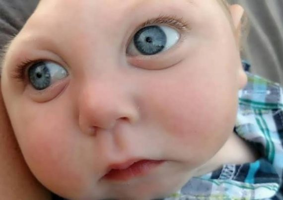 کودک عجیب مبتلا به آنسانفالی