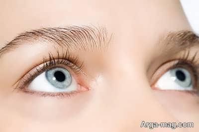 راه های درمانی موثر در رفع کبودی زیر چشم