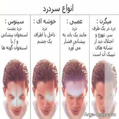 علت ایجاد سردرد بالای سر چیست؟