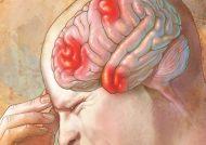 سردرد بالای سر