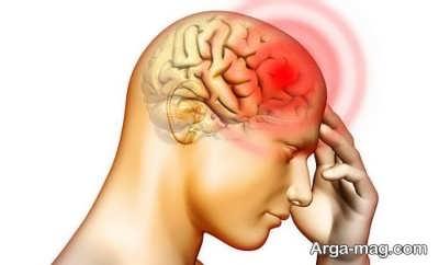 درمان های دارویی و خانگی سردرد بالای سر