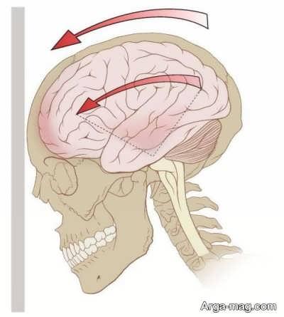 آنچه باید درباره سردرد بالای سر بدانید و خطری که باید جدی بگیرید!
