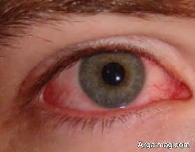 علائم تبخال چشم
