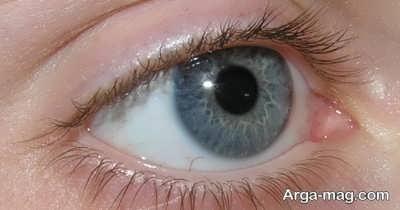 راه های تشخیص تبخال چشم
