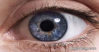 تبخال چشم، علائم و درمان