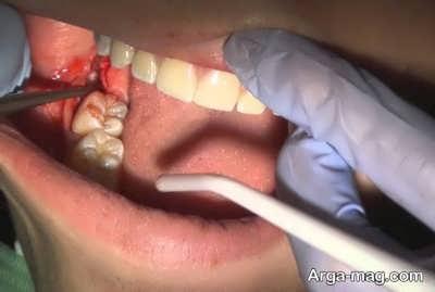 تاثیرات جراحی دندان عقل