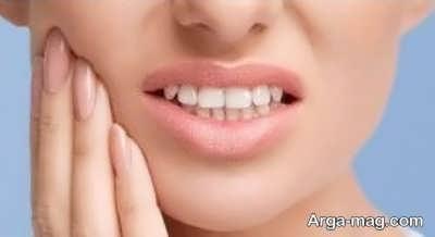 آشنایی با عوارض جانبی کشیدن دندان عقل
