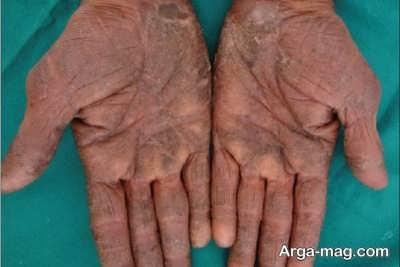 درمان حساسیت پوست دست