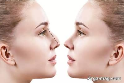 نکاتی در مورد عمل بینی با لیزر