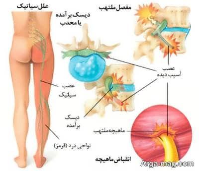 darman dard sciatica 1 - بهترین روش ها برای درمان درد سیاتیک کدامند؟