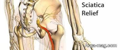 darman dard sciatica 11 - بهترین روش ها برای درمان درد سیاتیک کدامند؟