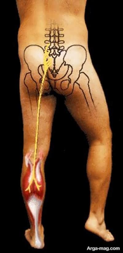 darman dard sciatica 4 - بهترین روش ها برای درمان درد سیاتیک کدامند؟