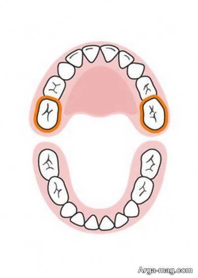 DANDAN 10 - دندان های کودکان به چه ترتیبی رشد خواهد کرد؟