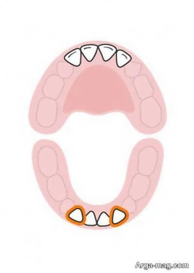 DANDAN 4 - دندان های کودکان به چه ترتیبی رشد خواهد کرد؟