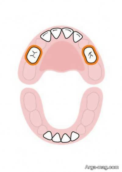 DANDAN 5 - دندان های کودکان به چه ترتیبی رشد خواهد کرد؟