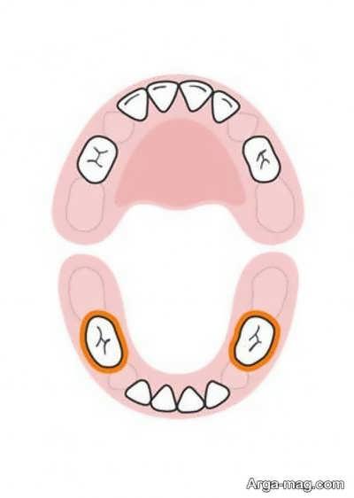 DANDAN 6 - دندان های کودکان به چه ترتیبی رشد خواهد کرد؟