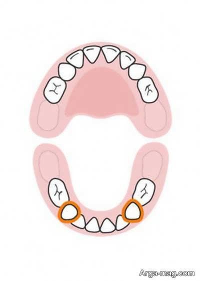 DANDAN 8 - دندان های کودکان به چه ترتیبی رشد خواهد کرد؟