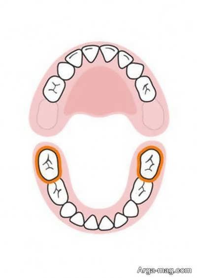 DANDAN 9 - دندان های کودکان به چه ترتیبی رشد خواهد کرد؟