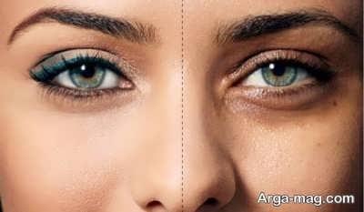 روش های رفع کبودی زیر چشم